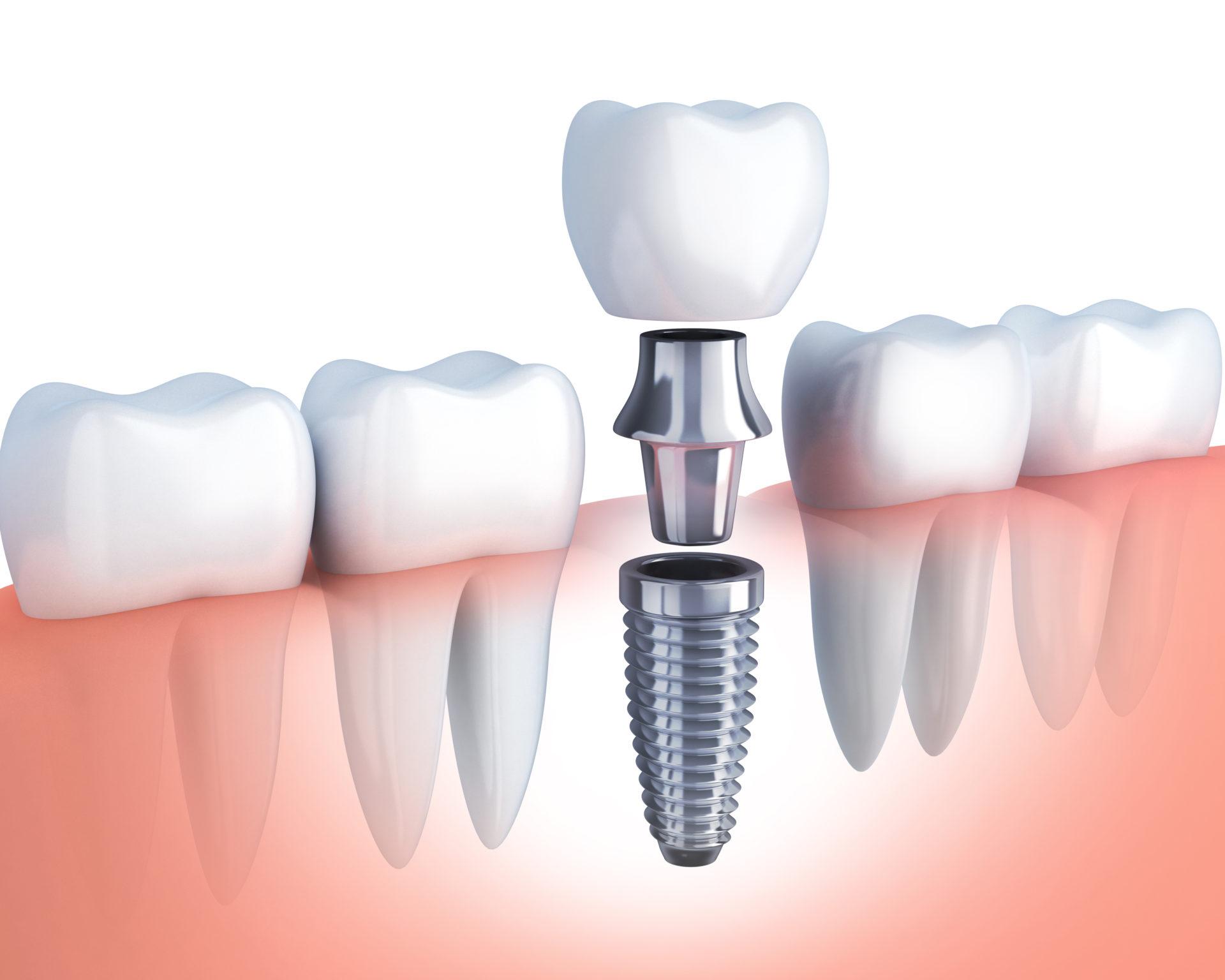 インプラント<br><small>implant</small>
